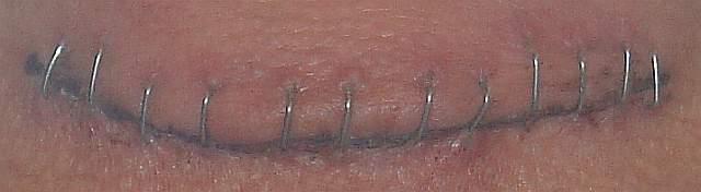 Cicatriz de 12 puntos en la garganta